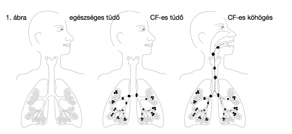 Kalcinál és prosztata fibrózist